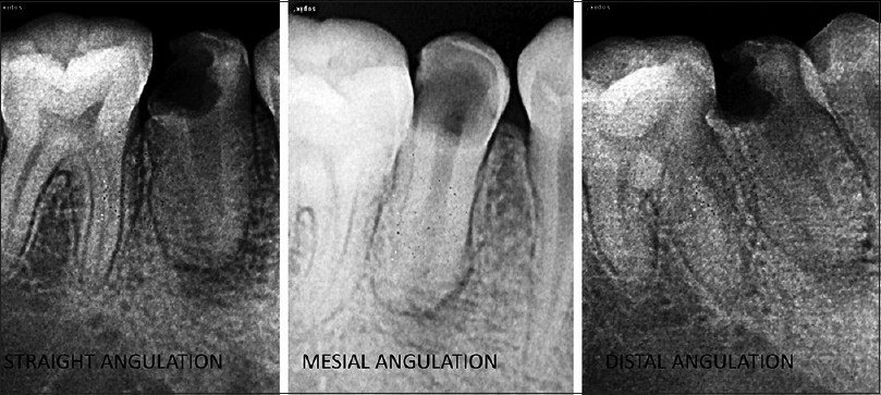 Figure 1: Preoperative radiographs