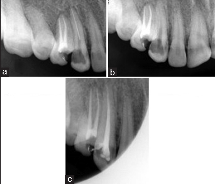 Figure 3: Sequence of fragment removal in case 3. (a) Intraoral periapical showing separated instrument in maxillary canine. (b) Intraoral periapical showing fractured instrument removed from the canal. (c) Intraoral periapical showing obturated maxillary canine