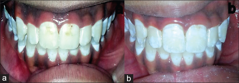 Figure 1: (a) Preoperative view showing dental fluorosis (b) Postoperative view showing the clinical efficacy of phosphoric acid in microabrasion technique