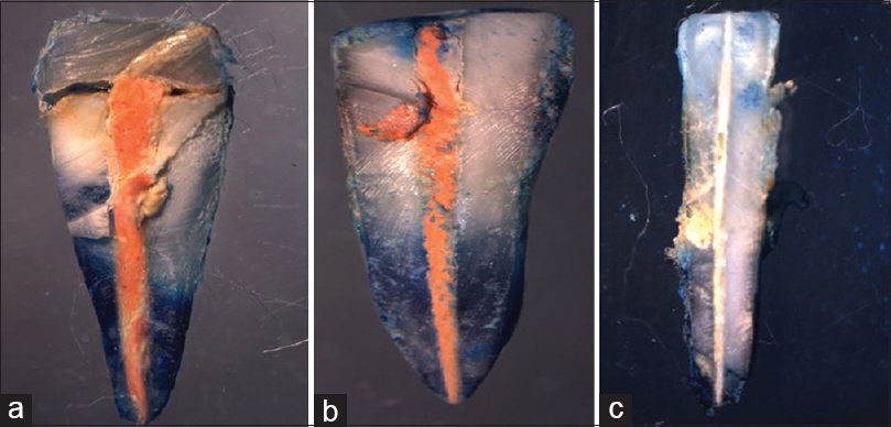 Figure 2: Group A, Group B, Group C apical dye penetration in obturated tooth seen under stereomicroscope. (a) Group A – Gutta percha with AH Plus. (b) Group B – Real seal system. (c) Group C – Smart seal system